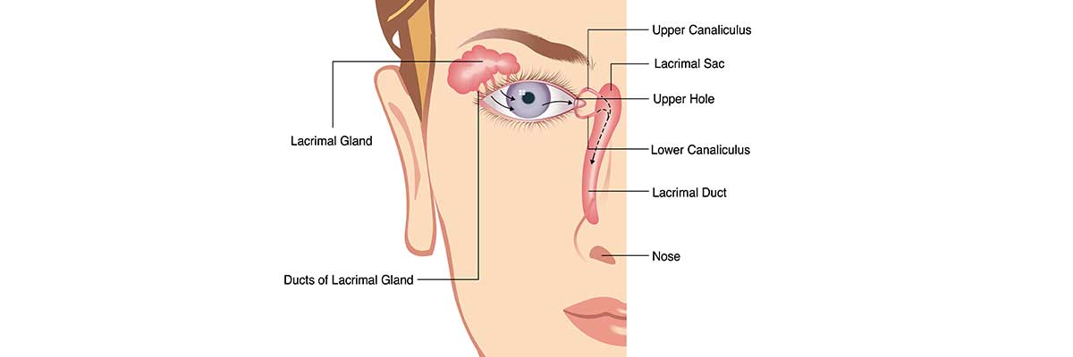 LACRIMAL DUCT OBSTRUCTION IN ADULTS AND ITS TREATMENT | Op. Dr ...